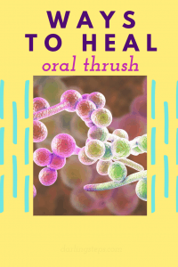 Ways To Cure Oral Thrush 1